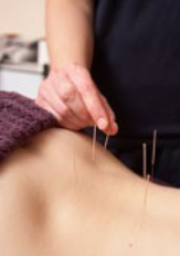 Photo of acupuncture treatment